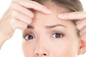 راههای درمان جوش های پوستی