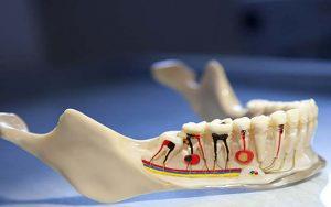 عصب کشی دندان و سوالات رایج درباره آن