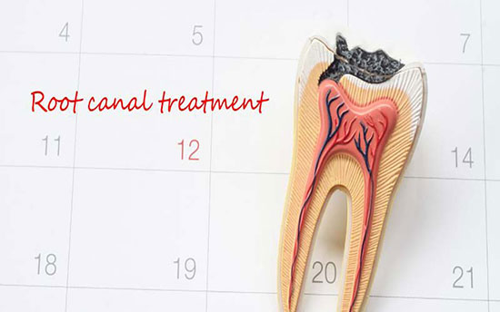پاسخ به ۷ سوال رایج درباره عصب کشی دندان