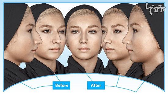 مرکز اسكن و طراحی ٣ بعدی جراحی زيبايی صورت